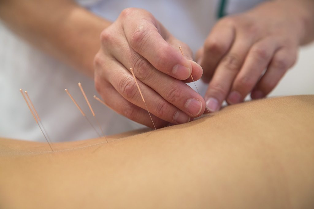 Acupuncture Maypole Health